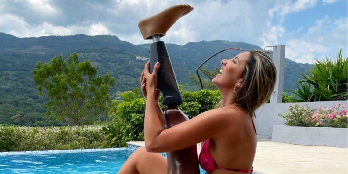 A un año de su operación, la miss colombiana Daniella Álvarez crea fundación para donar prótesis